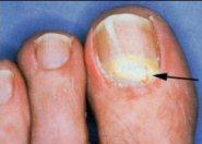 Hongos uñas Onicomicosis subungueal proximal