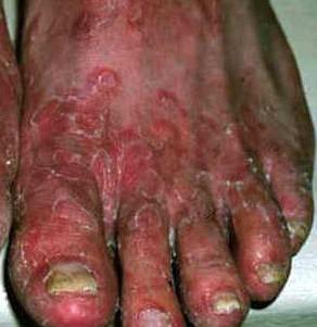 Estado avanzado de hongos en los pies causado por Trichophyton mentagrophytes