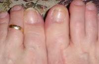 Las limas para las uñas desechables al hongo comprar
