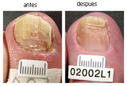 Onicomicosis subungueal distal
