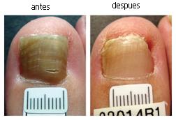 Hongos en las uñas de los pies tratados con laser paciente 2