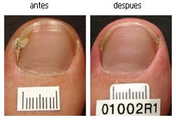 Hongos en las uñas de los pies tratados con laser paciente 3