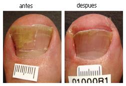La uña sobre el pulgar de la mano acostillado el tratamiento