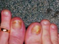 200 x 150 · 10 kB · jpeg, para curar los hongos en las uñas de los