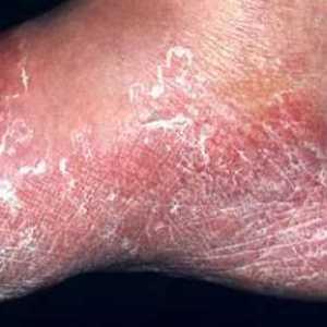 La grieta sobre el dedo de la mano cerca de la uña de la causa y el tratamiento