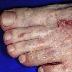Como es posible librarse del hongo de los pies